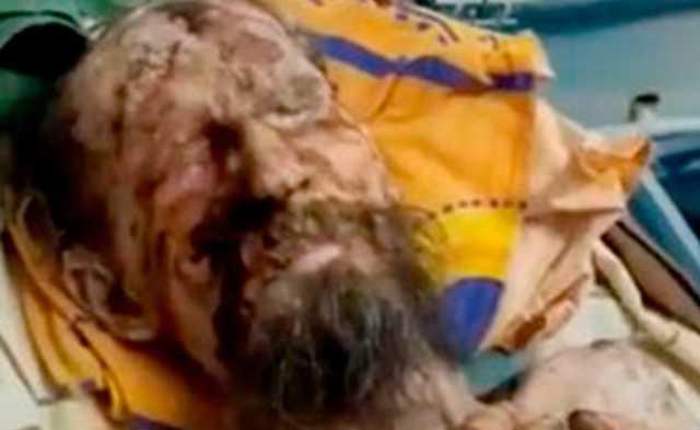 Восставший из могилы житель Сочи оказался страдающим от псориаза казахстанцем